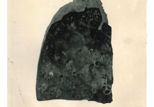 Photograph of a lung tissue sample from 1918 showing flu damage